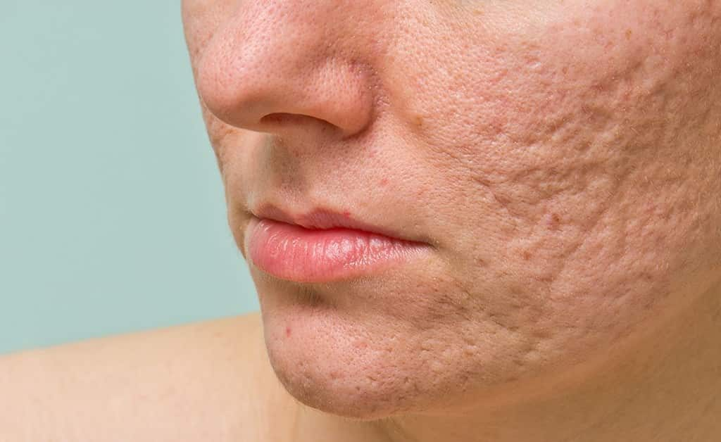 Acne scarring - Venus medical