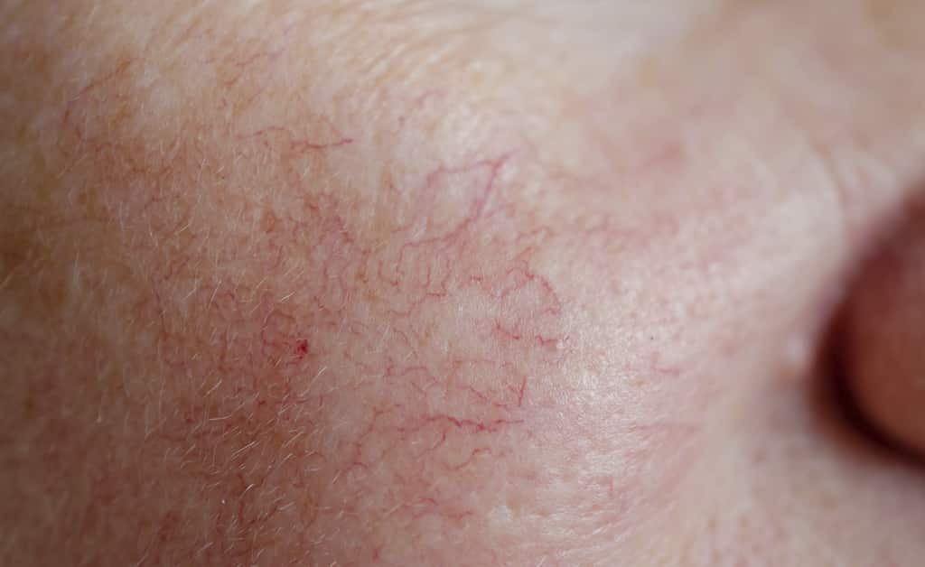 Veins breasts purple on Varicose veins